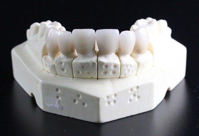 טיפולי השתלת שיניים – למראה אסתטי מושלם